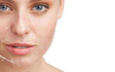 Conheça peelings que revolucionam Dermatologia