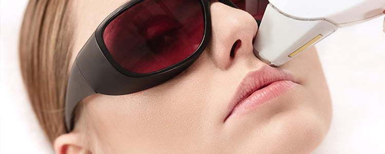 Benefícios do laser na Dermatologia